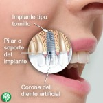 implante_dental
