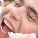 Implantes dentales en Valladolid